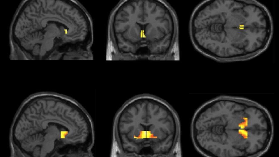 Neurologii au gasit asemanari izbitoare intre consumul de droguri si pornografie